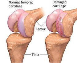 Cartilage Damage to the Knee