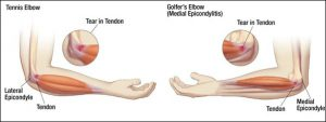 Tennis and Golfers Elbow Pain Management