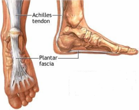 Plantar Faciitis Treatment and Pain Management