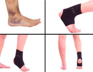 full-ankle-support-for-compression-support-treatment