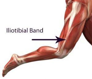 Treatment of Illotibial Band Pain