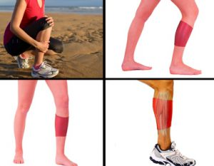Shin Splint Treatment and Pain Relief